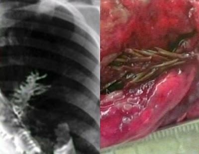http://1.bp.blogspot.com/_6--VDX-ciLY/TMlmGjZA7RI/AAAAAAAAADg/EbkKeSzc5_0/s1600/abc_fir_lung_090416_ssh.jpg